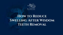 How to Reduce Swelling After Wisdom Teeth Removal