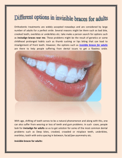 Different options in Invisible Braces for Adults