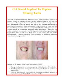 Get Dental Implant To Replace Missing Tooth